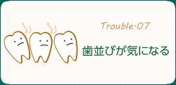歯並びが気になる